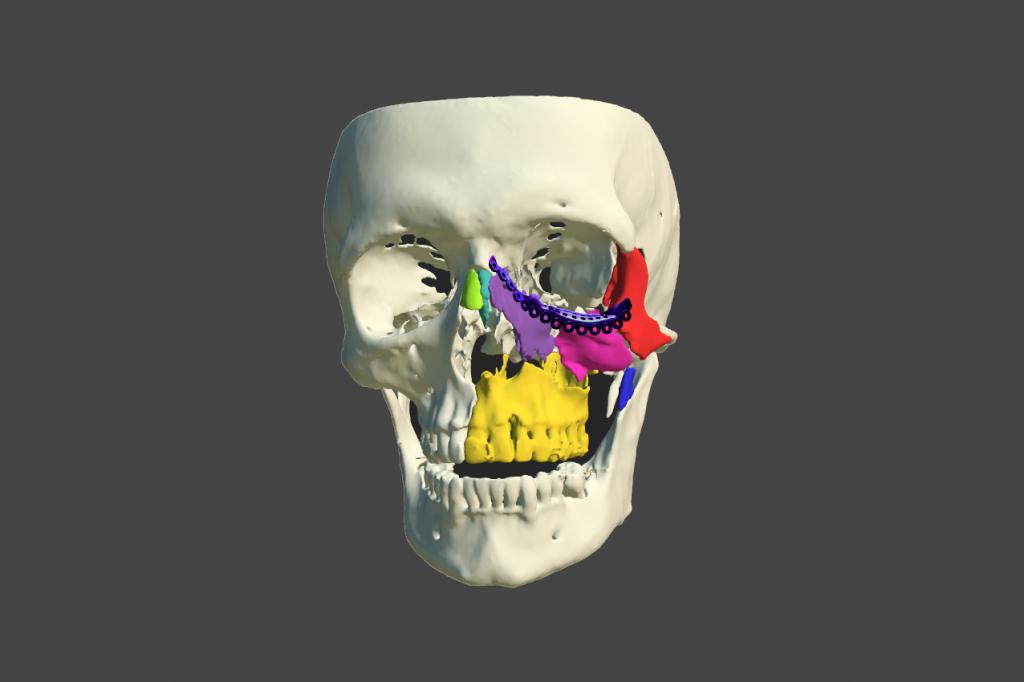 Infografía de esqueleto de una cara